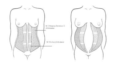 magemuskler etter fødsel